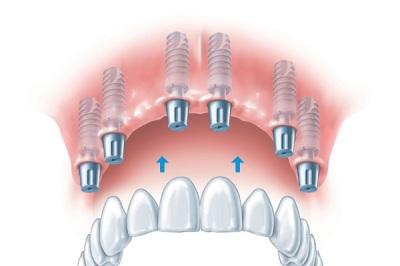 All on 6 имплантация зубов
